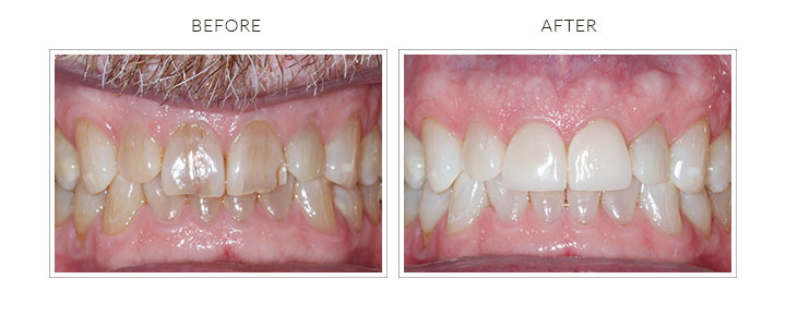 before and after photo of cosmetic dental veneers